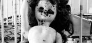 Ужасный случай в Аргентине: обезобразили одиннадцатилетнюю девочку